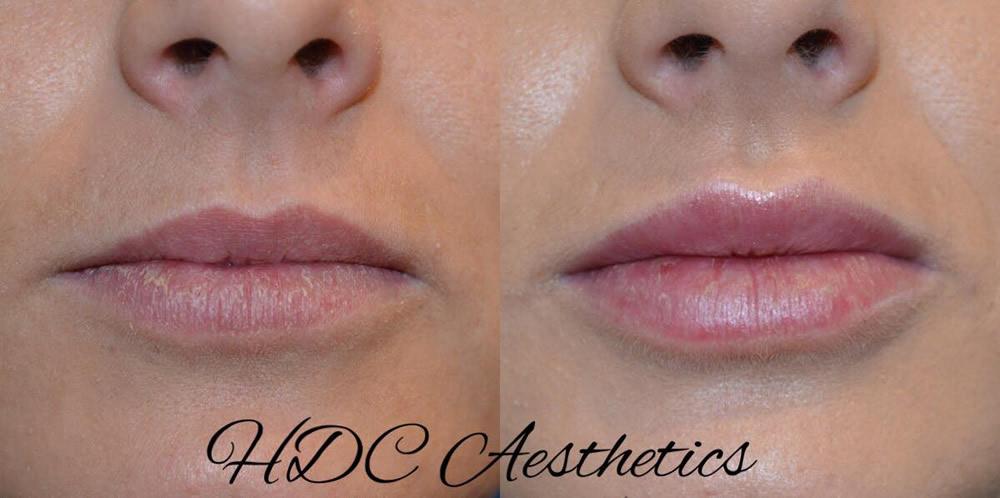 Facial Aesthetics Airdrie Anti Wrinkle Injections Coatbridge